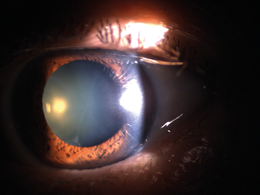 External photograph of the eye depicting a cataract.
