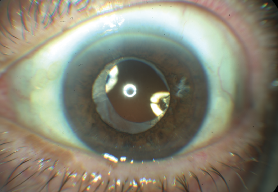 External photograph of the eye after lens replacement with an intra-ocular lens following cataract surgery.