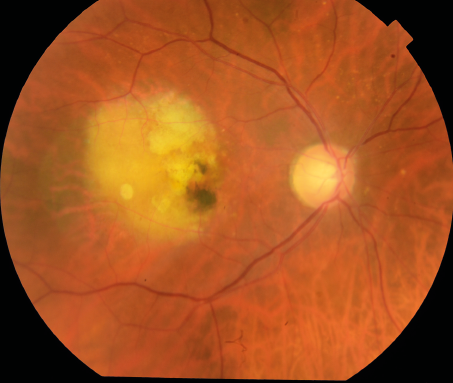 Color fundus photograph showing wet age-related macular degeneration.