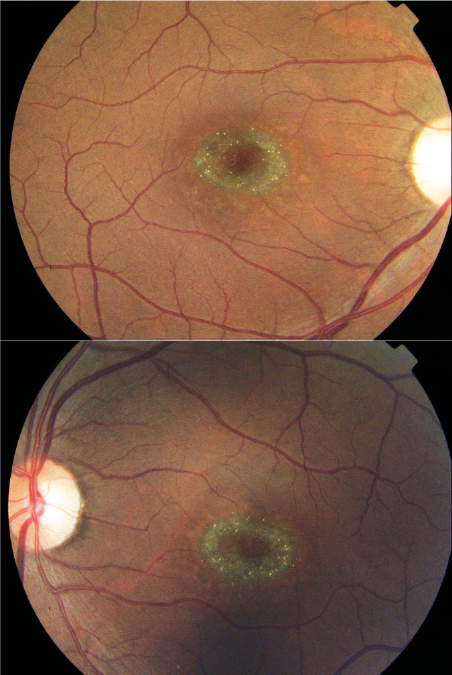 Color fundus photograph of Stargardt disease, respectively right and left eye.